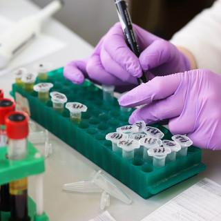 Meno positivi (ma anche meno tamponi) in Piemonte, ancora 14 decessi per il coronavirus
