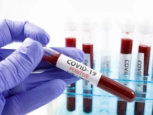coronavirus - foto d'archivio